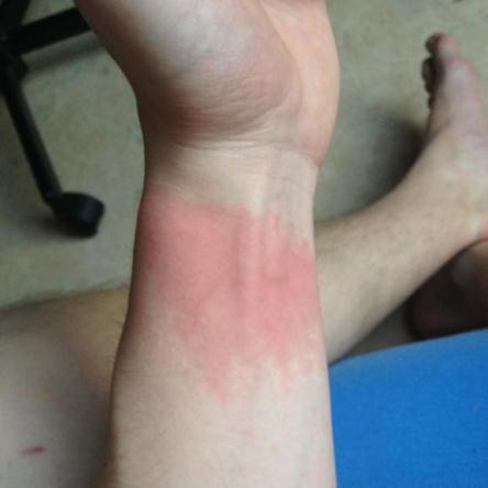Billede af ramt arm med rødmen