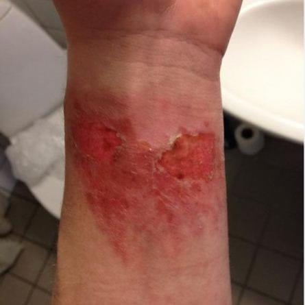 Arm en uge efter berøring med bjørneklo. Sår efter blærer.